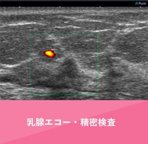 乳腺エコー・精密検査