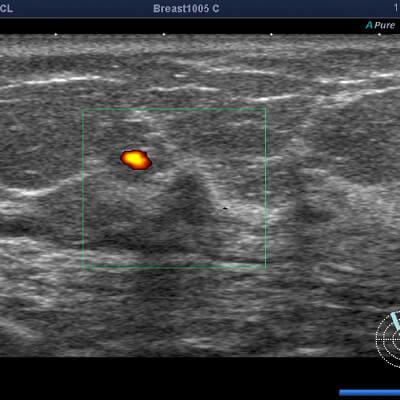 乳腺エコー検査画像