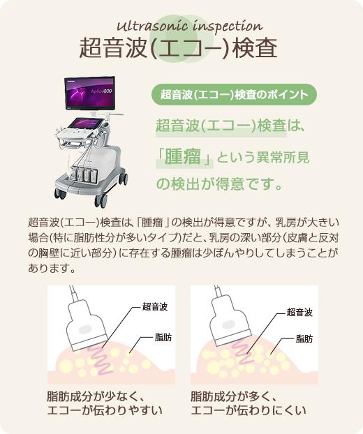 超音波(エコー)検査のポイント