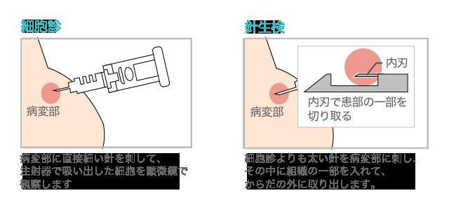 乳がん検査_針生検と細胞診の図