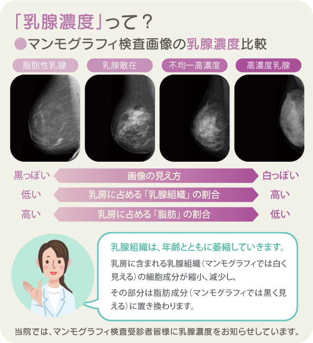 乳腺濃度の説明